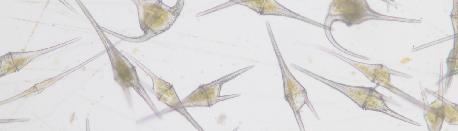 About 20 dinoflagellates under a microscope